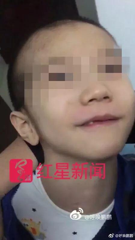 男童被继母虐颅骨缺损:生母向继母和生父索赔270万