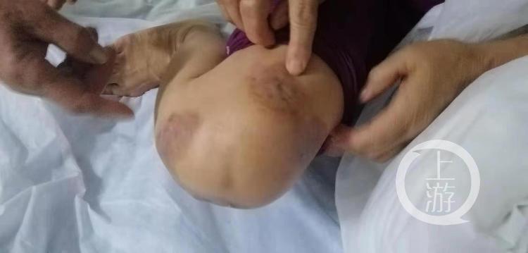 河南杞县回应多人针灸后皮肤溃烂:消毒不规范,致脓肿分枝杆菌感